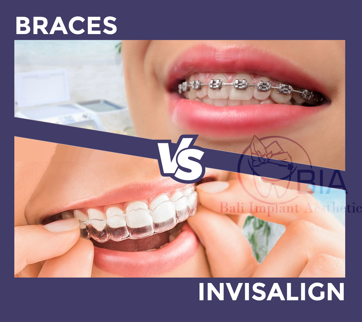 Excitement About Invisalign Vs Braces