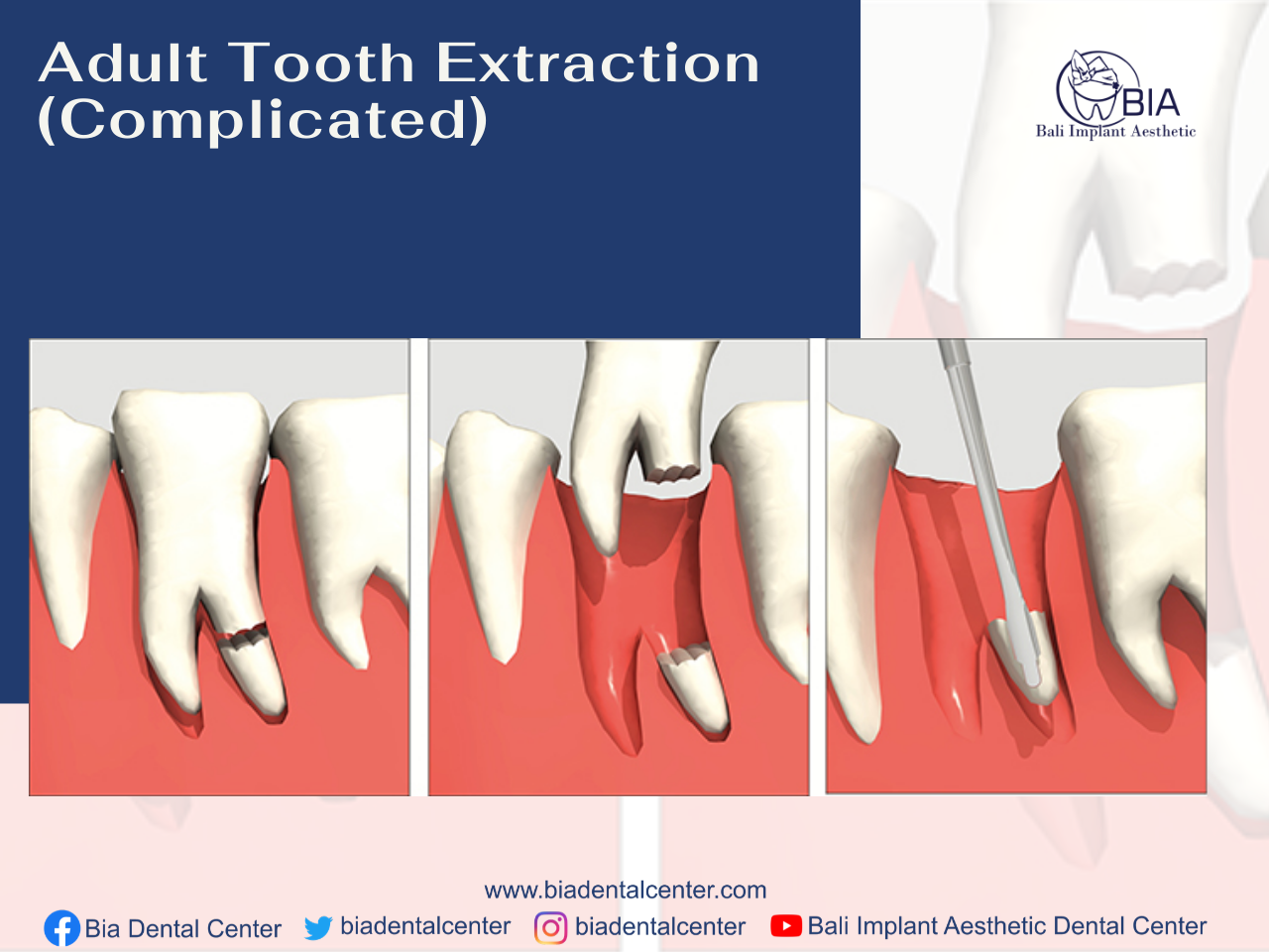 Adult Tooth Extraction Complication Bali Implant Aesthetic Bia Dental Center